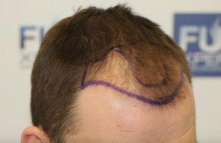 Bedava Saç Ekimi Yapan Devlet Hastaneleri Hangileridir?