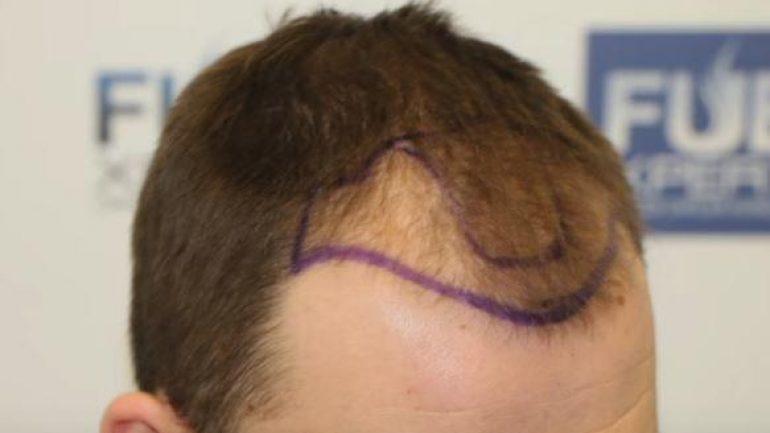 Bedavaya saç ekim yapan hastaneler