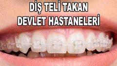 Diş Teli Takan Devlet Hastaneleri (Randevu ve Fiyatları)
